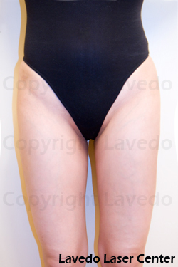 Best hair removal options bikini area
